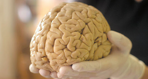В чем феномен мозга Ленина, который не дает покоя ученым
